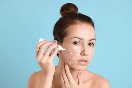 Teen girl with acne problem applying cream on light blue background 版權商用圖片