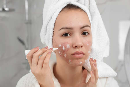 Teen girl with acne problem applying cream in bathroom Stock Photo