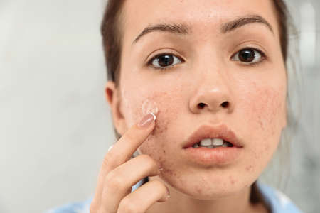 Teen girl applying acne healing patch, closeup