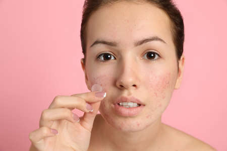 Teen girl applying acne healing patch on light pink background 版權商用圖片