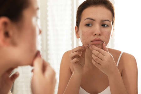 Teen girl with acne problem squeezing pimple near mirror in bathroom