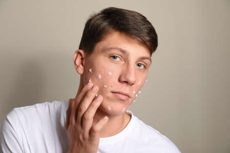 Teen guy with acne problem applying cream on beige background