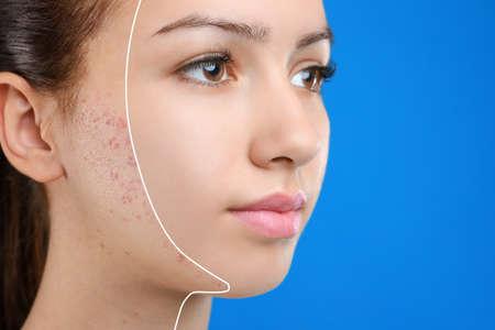 Adolescente avant et après le traitement de l'acné sur fond bleu