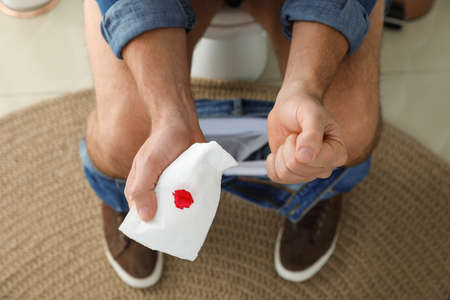 Man holding toilet paper with blood stain in rest room, closeup. Hemorrhoid concept 스톡 콘텐츠