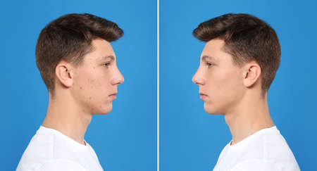 Teenager before and after acne treatment on blue background