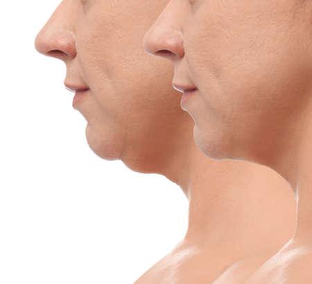 Mujer madura antes y después de la operación de cirugía plástica sobre fondo blanco, primer plano. Problema de papada
