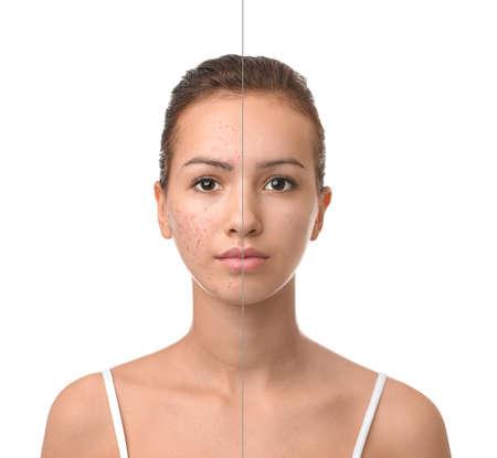 Adolescente avant et après le traitement de l'acné sur fond blanc Banque d'images