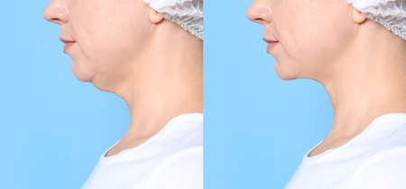 Mature woman before and after plastic surgery operation on blue background, closeup. Double chin problem
