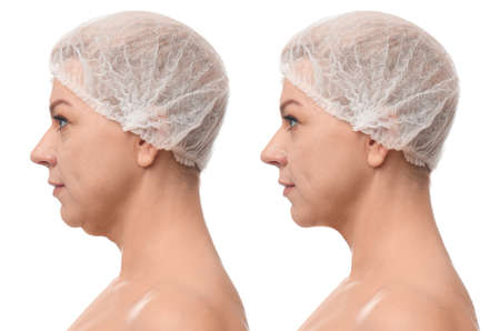 Mature woman before and after plastic surgery operation on white background. Double chin problem