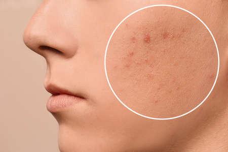 Teenage boy with acne problem on beige background, closeup 스톡 콘텐츠