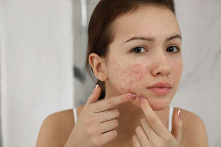 Teen girl with acne problem squeezing pimple indoors 스톡 콘텐츠
