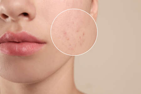 Teenage girl with acne problem on beige background, closeup 스톡 콘텐츠