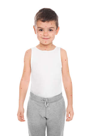 Little boy with chickenpox on white background Banco de Imagens
