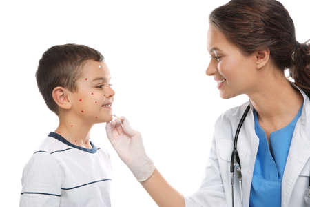 Doctor applying cream onto skin of little boy with chickenpox on white background. Varicella zoster virus
