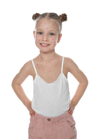 Little girl with chickenpox on white background. Varicella zoster virus Stock Photo