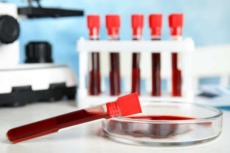 Test tube and Petri dish with blood samples on table in laboratory, closeup. Virus research