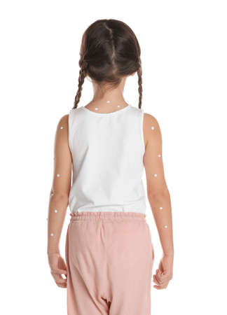 Little girl with chickenpox on white background, back view