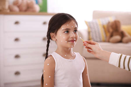 Mother applying cream onto skin of her daughter with chickenpox at home Stock Photo