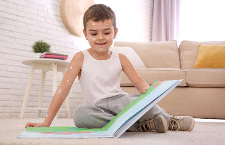 Little boy with chickenpox reading book at home