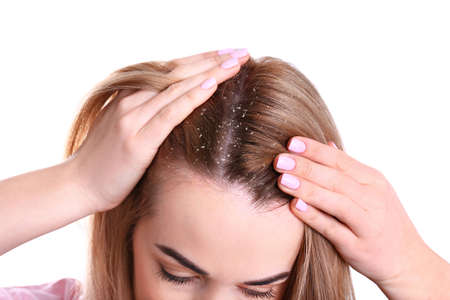 Woman with dandruff in her hair on white background, closeup