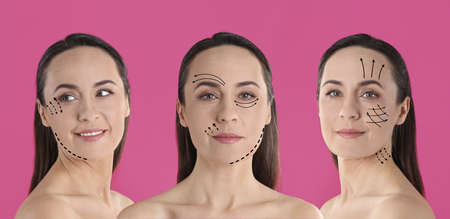 Photos of mature woman with lifting marks on face against pink background, collage. Cosmetic surgery