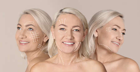 Photos of mature woman with lifting marks on face against beige background, collage. Cosmetic surgery