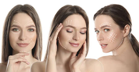 Photos of young woman with lifting marks on face against white background, collage. Cosmetic surgery Фото со стока