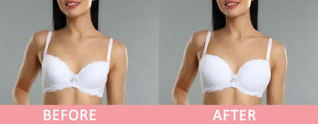 Woman before and after breast augmentation on light grey background, closeup. Banner design Reklamní fotografie