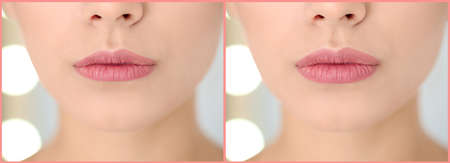 Woman before and after lip correction procedure, closeup. Banner design