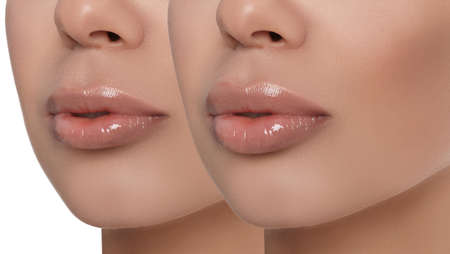 Woman before and after lip correction procedure, closeup