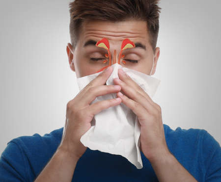 Man suffering from runny nose as allergy symptom. Sinuses illustration on face