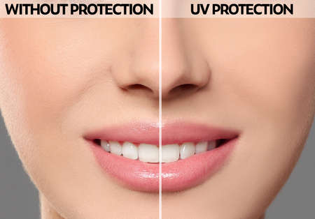 Young woman without and with sun protection cream on her face, closeup