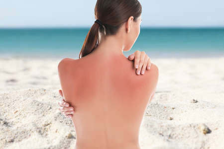 Woman with sunburn on beach. Skin protection from sun in summer 版權商用圖片