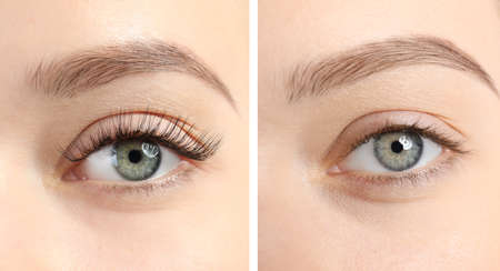 Collage with photos of young woman before and after eyelash extension procedure, closeup