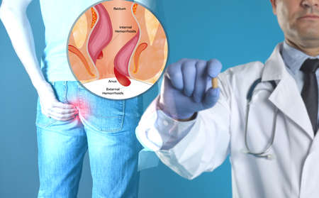 Doctor holding suppository near man suffering from hemorrhoid pain. Illustration of unhealthy lower rectum