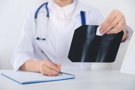 Orthopedist examining X-ray picture at desk in office, closeup