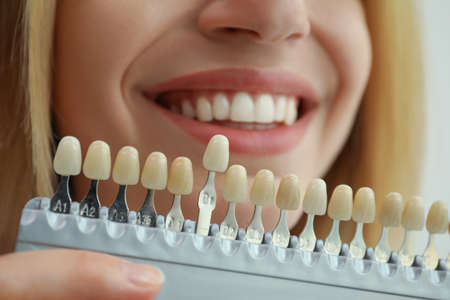 Woman matching teeth color with palette, closeup. Cosmetic dentistry Stock Photo