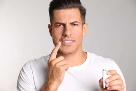 Man with herpes applying cream on lips against light gray background
