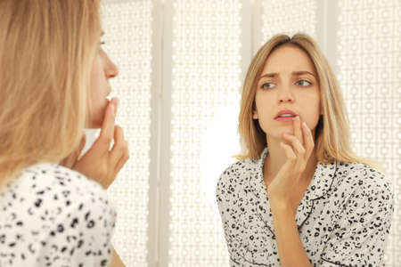 Woman with herpes applying cream onto lip near mirror at home 免版税图像