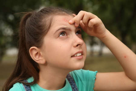 Girl scratching forehead with insect bite in park