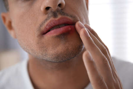 Man with herpes touching lips against blurred background, closeup Banque d'images