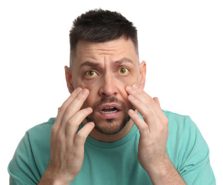 Scared man checking his health condition on white background. Yellow eyes as symptom of problems with liver
