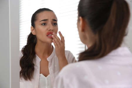 Young woman with herpes touching lips in front of mirror at home