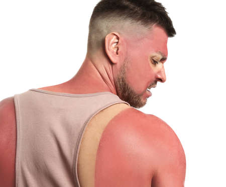 Man with sunburned skin on white background, back view