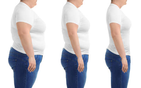 Woman before and after weight loss on white background, collage Archivio Fotografico