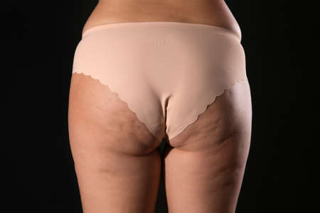 Woman with cellulite on black background, closeup