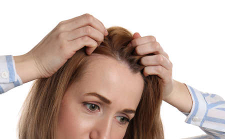 Woman suffering from baldness on white background, closeup