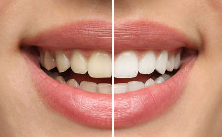 Collage with photos of woman before and after teeth whitening, closeup