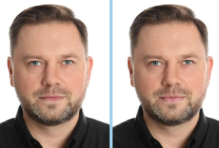 Collage with photos of man before and after lips augmentation