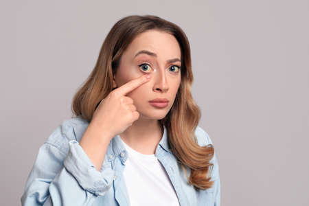 Woman with yellow eyes on gray background. Liver problems symptom Reklamní fotografie